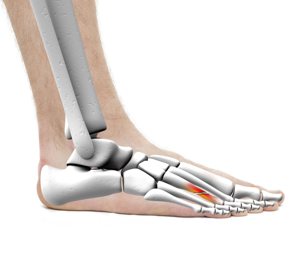 Come see us to heal a metatarsal fracture!