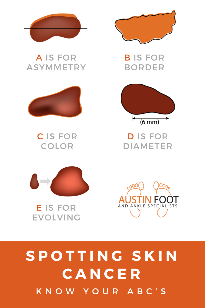 Spotting skin cancer on your feet