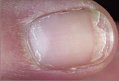 Brittle Nail Syndrome