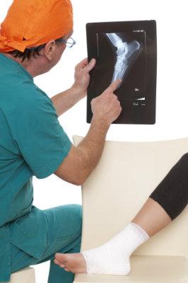 Doctor explaining x-ray