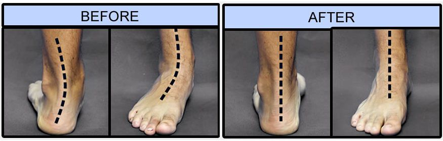 Flat foot before and after