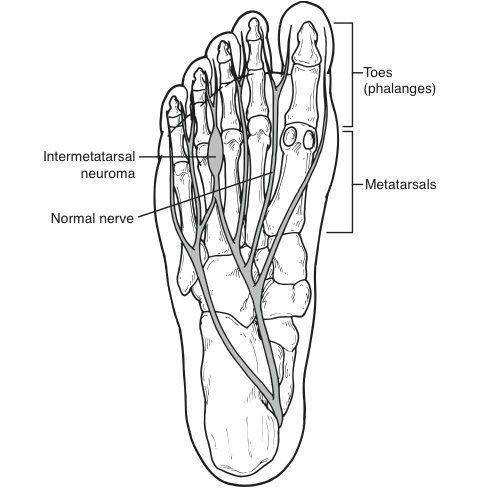 Morton's Neuroma, Interdigital Neuroma