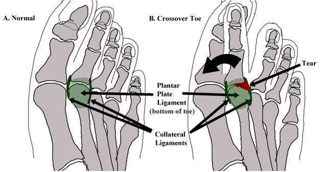 Plantar plate tear explained!