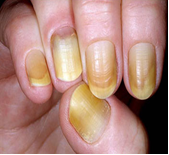 Yellowing Nails
