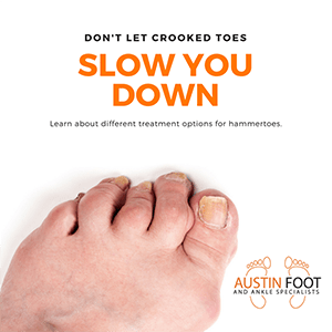 dont let crooked toes slow you down