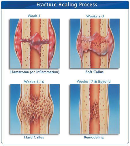 Healing Fracture