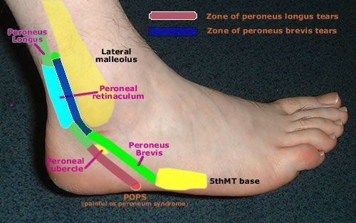 About Peroneal Tendons
