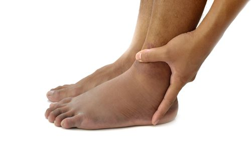 Swollen feet can be a sign of many conditions.
