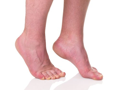 Walking on your toes all the time is not good for your body.