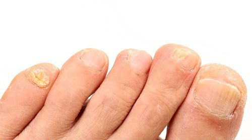 Fungal nails can be easily cured, but you have to make the first step.