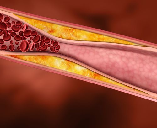 Blood clots are no joke - which is why you must take deep vein thrombosis seriously.