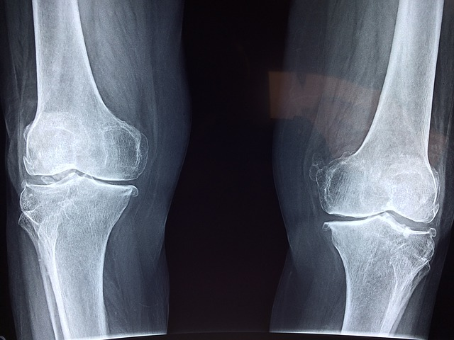How much is a broken knee cap worth in a personal injury case?
