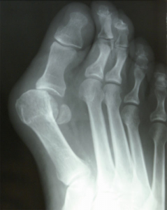 Bunion x-ray