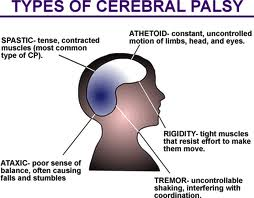 Northern Michigan Cerebral Palsy lawyers