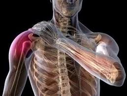 Rotator Cuff Settlements Michigan