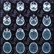 Stroke Misdiagnosis Misread CT Scan Lawsuit Michigan