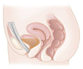 Michigan Bladder Sling Lawsuit Lawyers