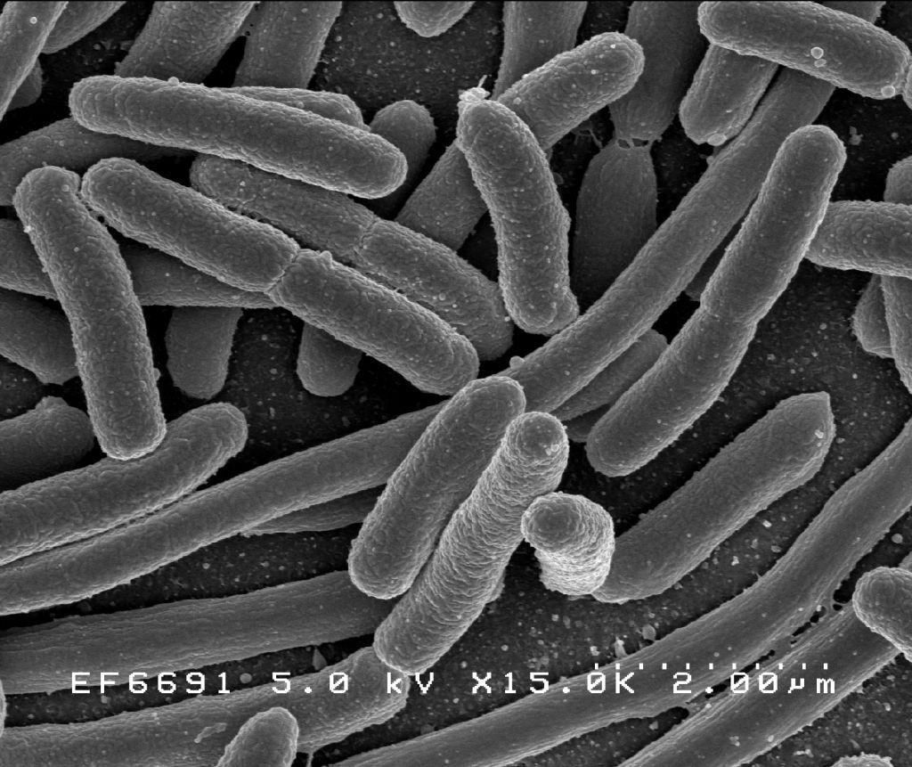 Michigan E. Coli Food Poisoning Lawyers