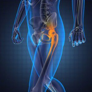 Michigan Hip Injury Lawsuit Lawyers
