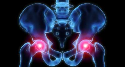 Michigan Hip Displasia Lawsuits