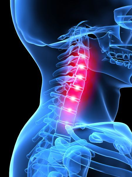 Michigan Neck Injury Lawyers