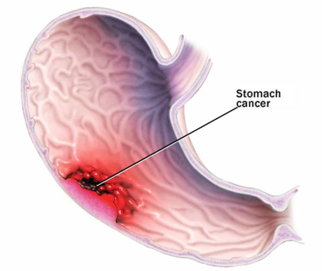 michigan stomach cancer lawsuit lawyers