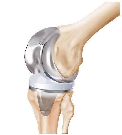 michigan zimmer knee replacement recalls and lawsuits