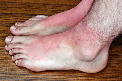 Sunburn on feet