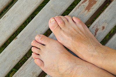 Bent toes could mean you're suffering from hammertoes