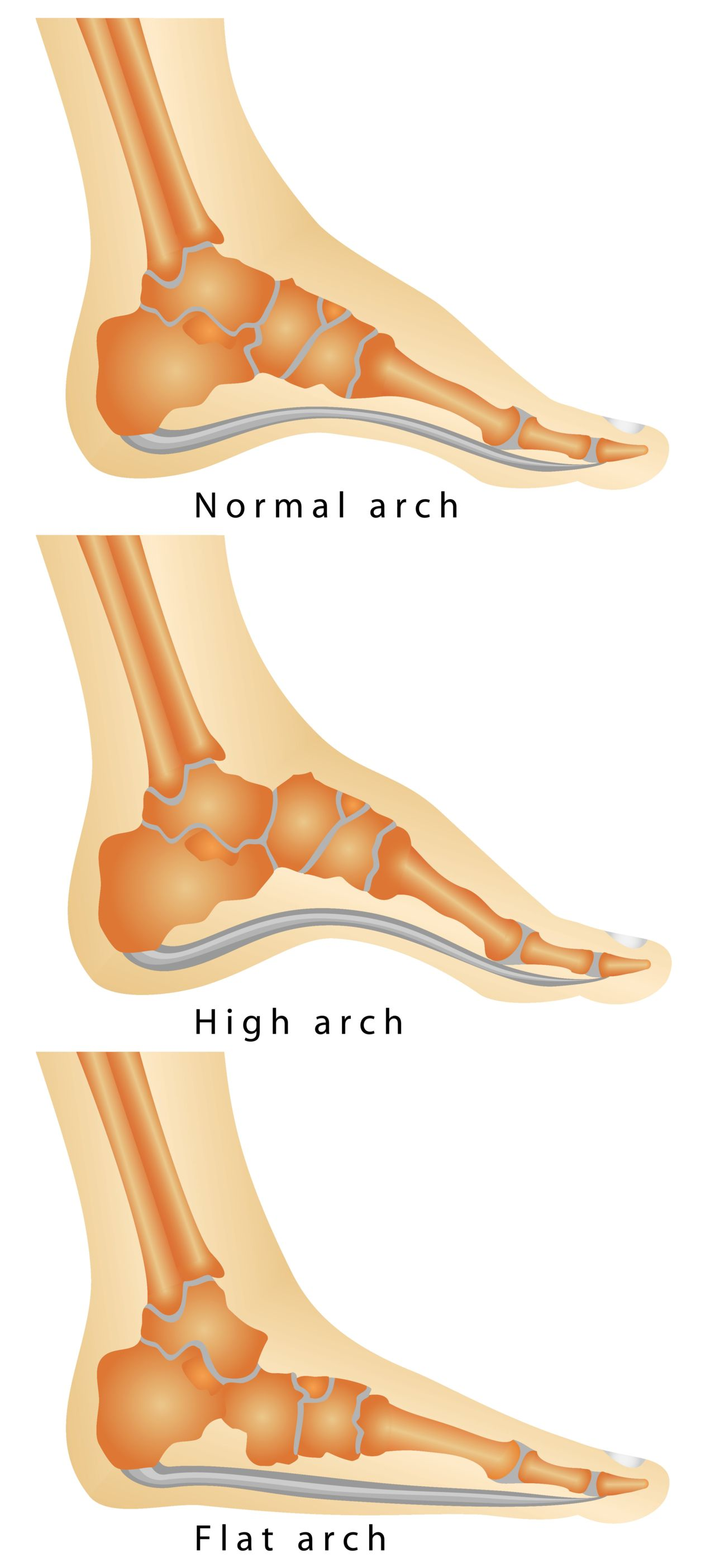 Your arch types determines what type of shoe you should use.