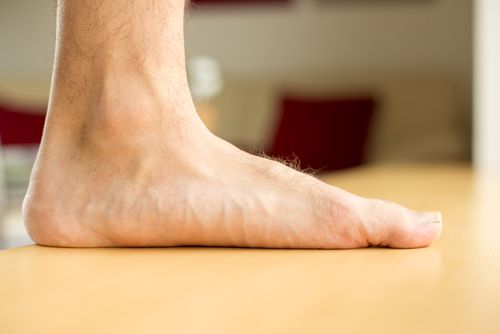 Flat or low arches can be a sign of tarsal coalition.