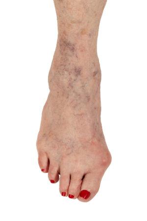 Foot with Hammertoe