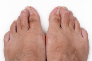 Men get bunions too