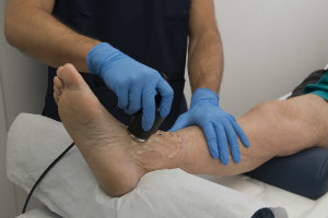 Ankle Laser Therapy