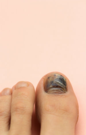 Runners get black toenails