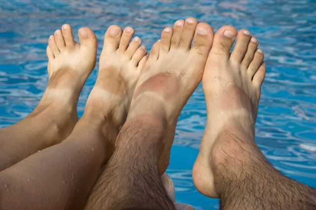 Avoiding Skin Cancer on the Feet