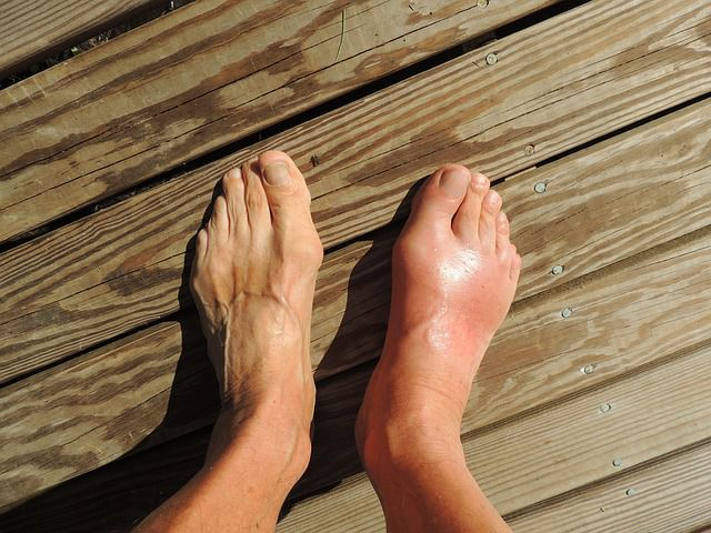 A foot affected with gout.