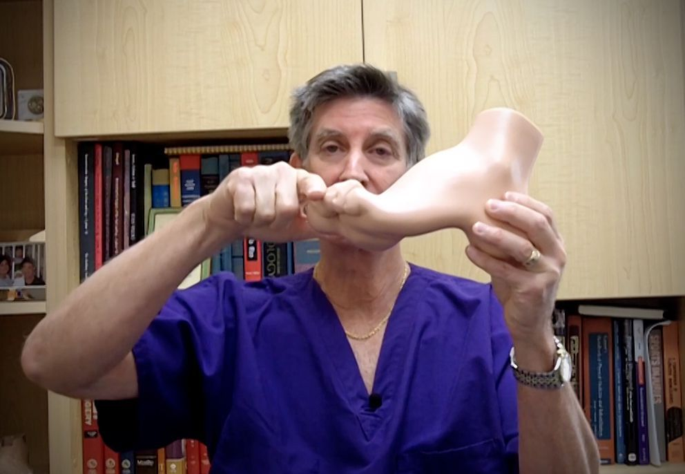 What does a hammertoe look like?