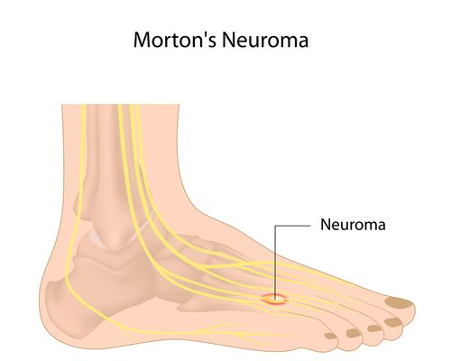 Neuroma diagram