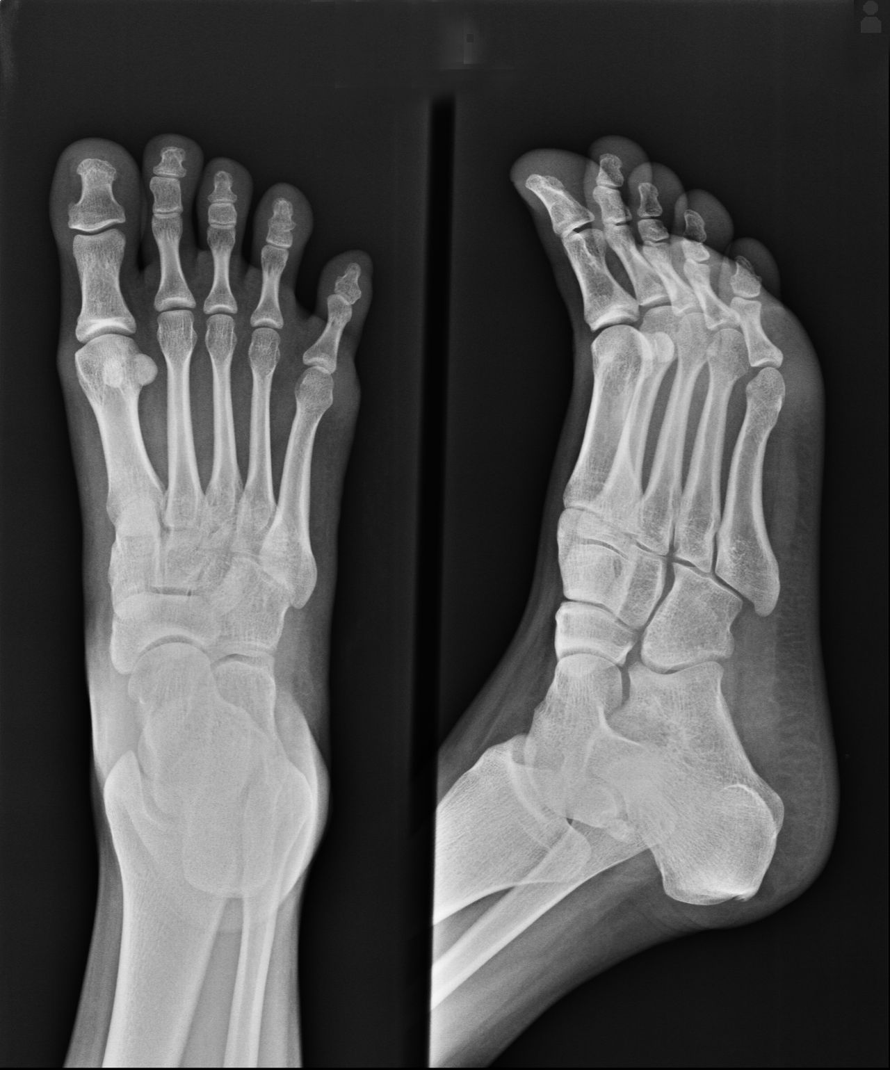How Xrays allow doctors to read your feet.