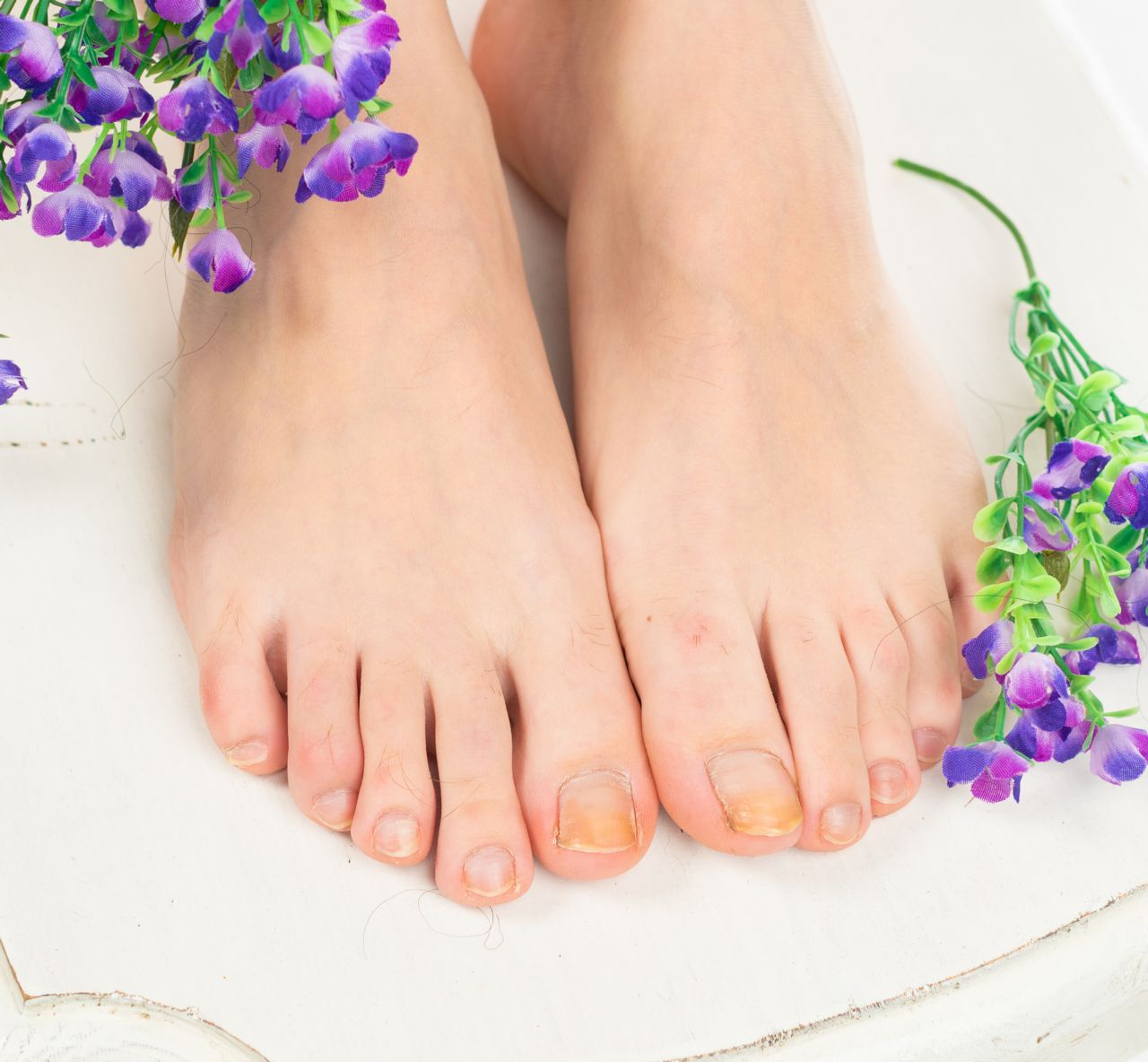 Not only are fungal toenails unhealthy, they're embarrassing.
