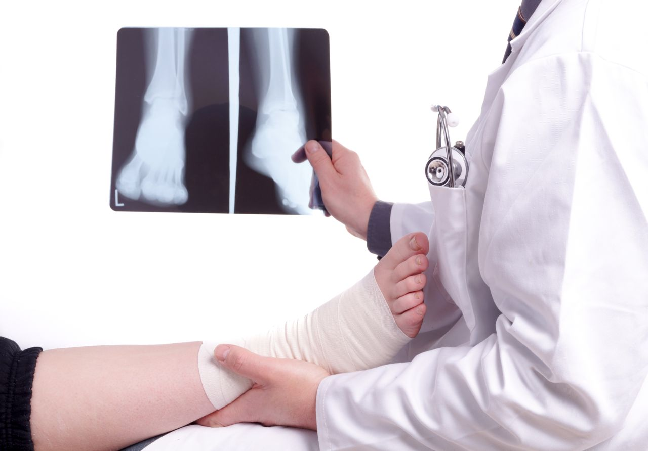 Podiatrists are the medical experts on your feet and ankles.