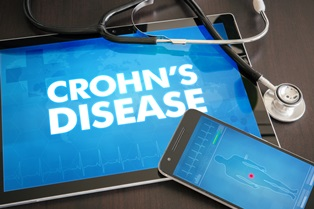 crohn's_disease_diagnosis