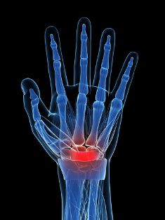 X-ray of a Hand Highlighting Wrist Pain