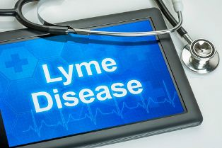 Lyme Disease Diagnosis and a Stethoscope