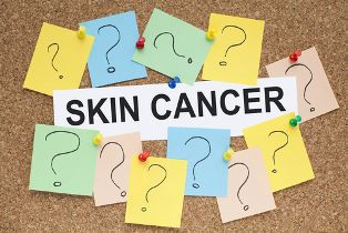 Skin Cancer Sign Surrounded by Question Mark Sticky Notes