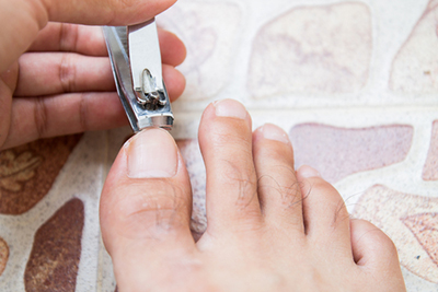 Trimming Toenails Properly