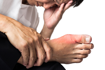 Treating Painful Gout