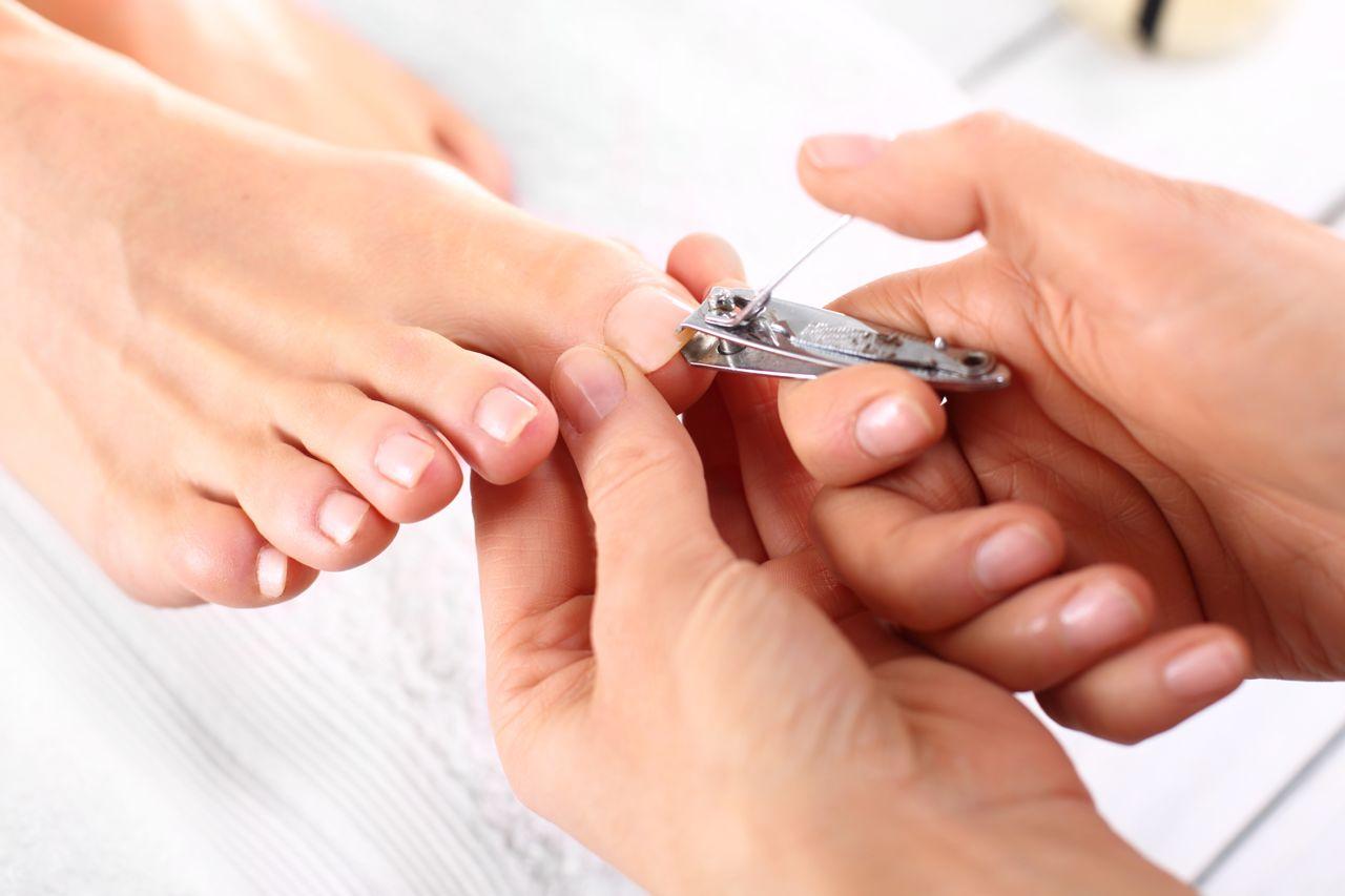 Trimming toenails can help prevent black toenails
