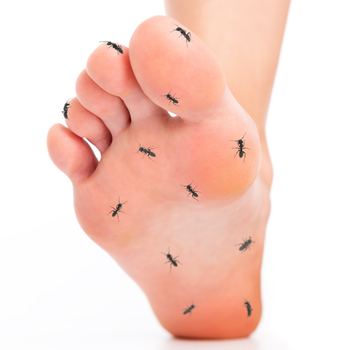 A neuroma can lead to tingling sensations in the feet